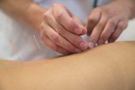 Akupunktura - cesta ke štíhlejší postavě